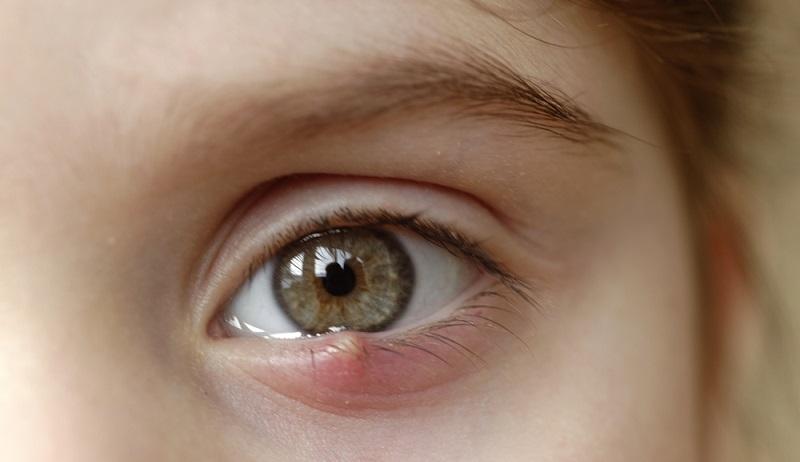 Die meisten Augenbeschwerden sind glücklicherweise harmlos und gut behandelbar. (#01)