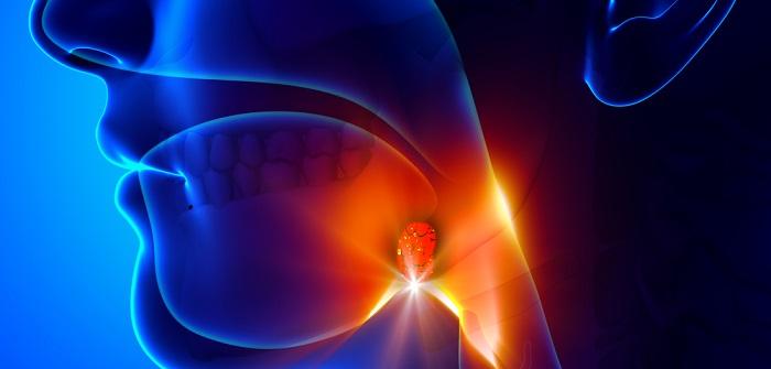 Entzündete Mandeln: Symptome, Ursachen und Maßnahmen