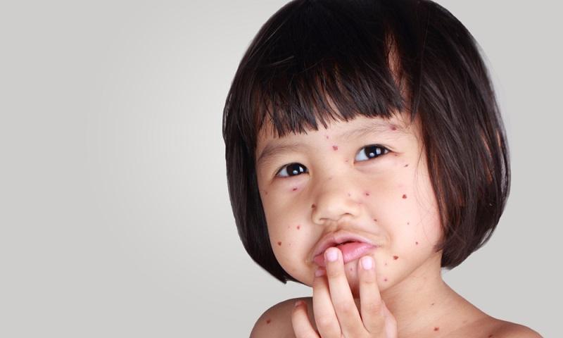 Eine Infektion mit Windpocken gehört zu den unangenehmsten Kinderkrankheiten, denn eine Ansteckung geht in ihrer Entwicklung oft mit einem typischen, heftigen Juckreiz einher.
