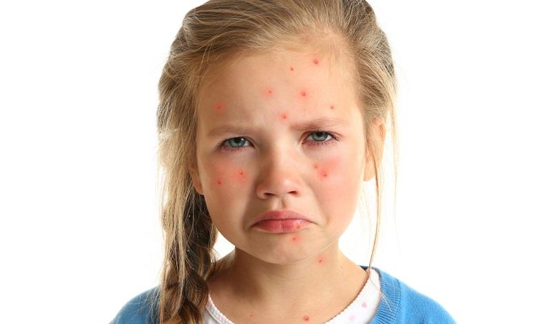 Das Bild über typische Kinderkrankheiten sollte man nicht zu schwarz malen. Denn Krankheiten härten ab und manchen immun. (#01)