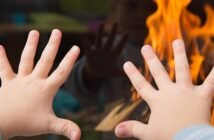 Verbrennungen behandeln: Verbrühungen & Verbrennungen bei Kindern
