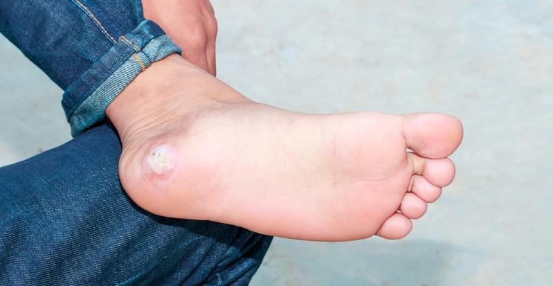 Die Vulgäre Warze (Verruca vulgaris) Sie ist die häufigste Form. Sie ist daran zu erkennen, dass sie hautfarben, rund und hart ist. (Foto: Shutterstock- pramot)